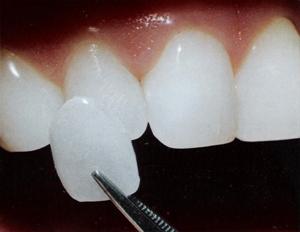Las Vegas cosmetic dentists who implant dental-veneers.