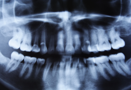 Our dentist las vegas office has advance technology for digital radiographing.