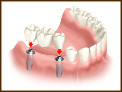 A photo for Dental implants to build crowns.
