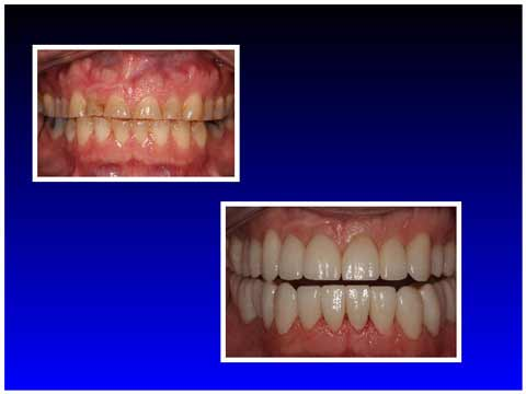A photo for the procedure at the dentist las vegas office of Dr. Spelman of full mouth reconstruction.