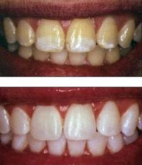 For a cosmetic dentist las vegas to perform dental whitening.