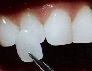 Las Vegas cosmetic dentists who implant dental-veneers.