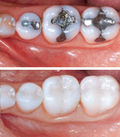 Dr. Spelman a dentist in Las Vegas can prefrom Metal Free Restorations.